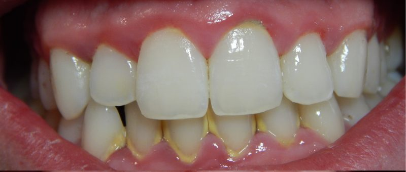 1. Gingivitis-before-and-after-3