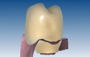 5.b-individualno-izdelan-abutment-za-implantate