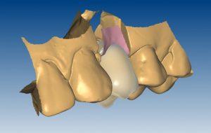5.c-Individualno-izdelan-abutment-za-implantate