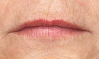 Ustnice starejše ženske